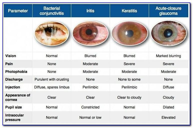 Optometric Technician Certification Exam